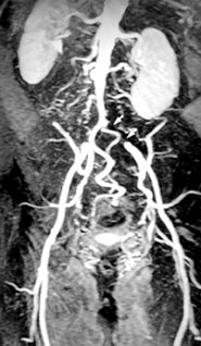 Bilateral Lower Extremity Angiogram
